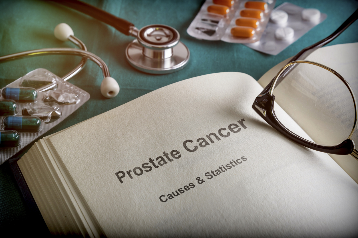 Diagnosis and treatment of prostate cancer